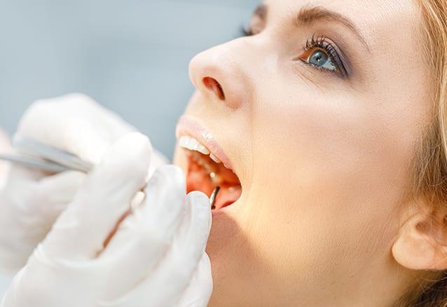 Dental Fracture