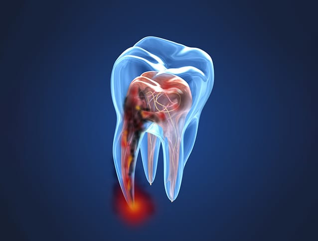 Root Canal in Chandler